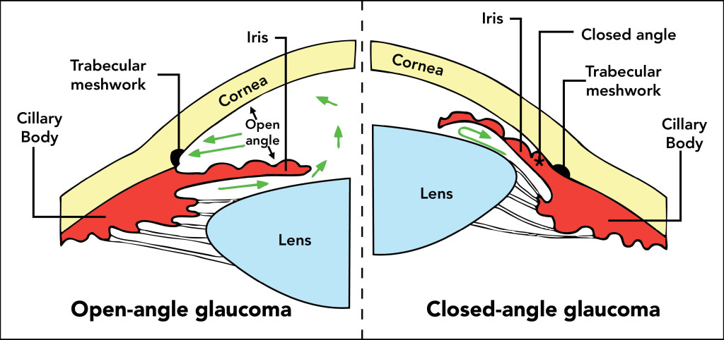 glaucoma -open and closed